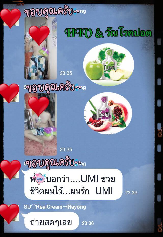 UMI-HIV-tuberculosis