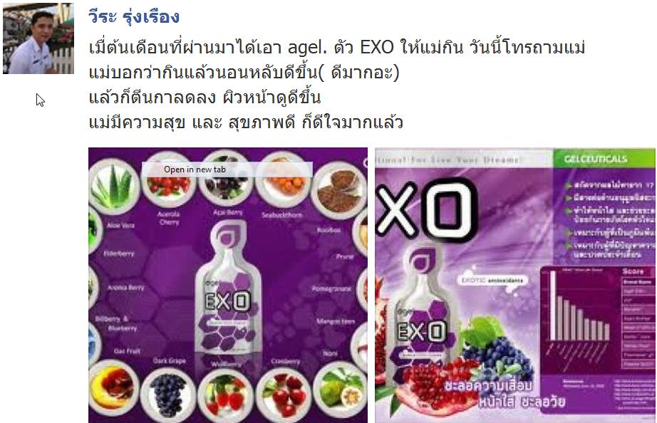 Share-Exo1
